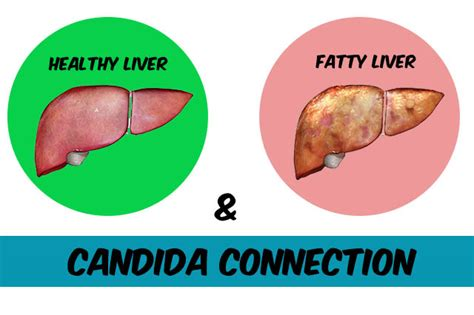Fatty Liver And Candida Infection: Is it Connected