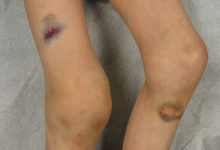 ecchymosis   Medical Pictures Info - Health Definitions Photos